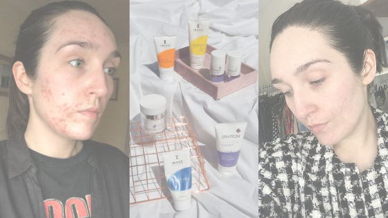 Adult Acne and How I Treat It